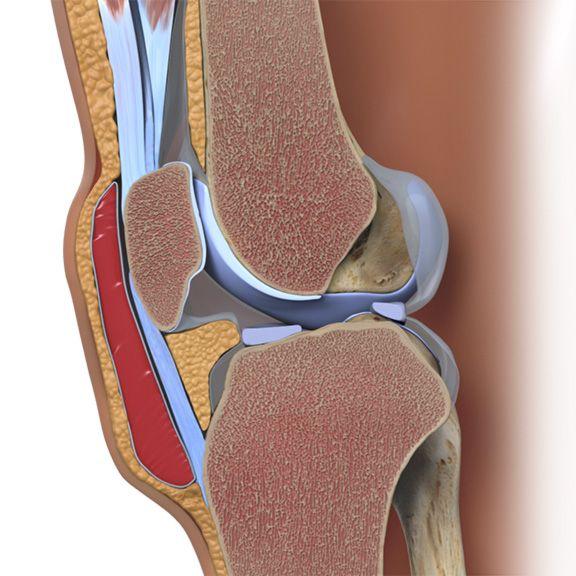Bursitis and Swollen Knees