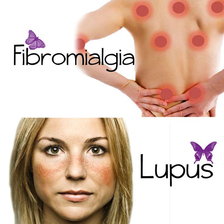 Lupus y Fibromialgia: similitudes y diferencias