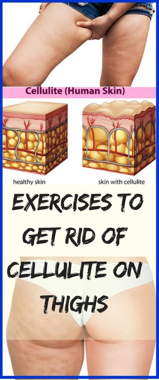 Cellulite is actually fat deposits just beneath the skin ...