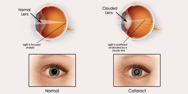 ,  &     Read here - http://floridaeyecareassociates.com/blog/the-causes-symptoms-treatments-of-cataracts  #EyeConditions #Cataracts #Causes #Symptoms #Treatment #Blog #Miami