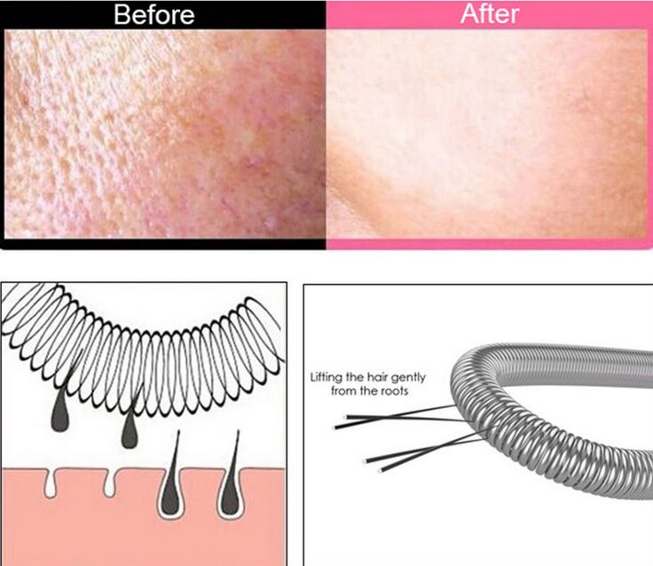 Facial Hair Remover By FitSkin - High Quality! Buy NOW On Amazon! http://www.amazon.com/Removal-Remover-Fitskin-Stainless-Threading/dp/B0147GI31A