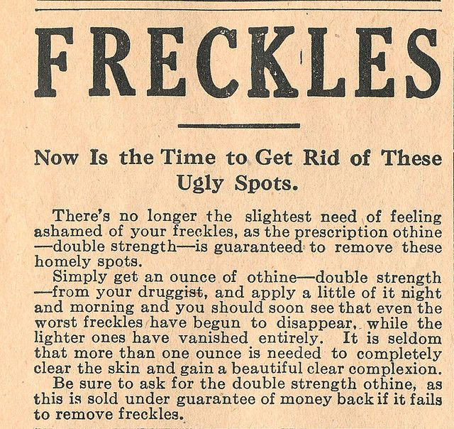 Othine Freckle Remover Ad, 1914 | by DominusVobiscum  Surprisingly, it's still sold today under the same name--and is one of the best sellers for skin bleaching.