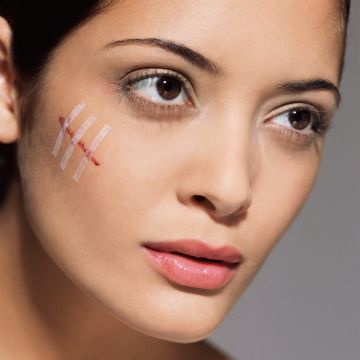 How to Get Rid of Scars—ForGood   Daily Makeover