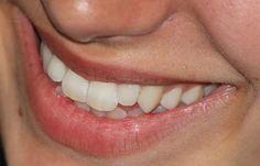 Zubný kameň: Zbavte sa ho efektívne pomocou domácich receptov