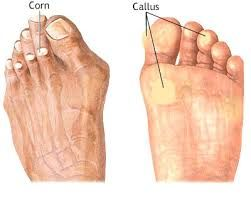 Corns and Calluses Treatment http://www.afootabove.co.uk/treatment/corns-and-calluses-treatment/ Treatment for callouses offered at Richmond Foot and Ankle Clinic. Call 937-228-3668 or visit richfeet.org for an appointment.