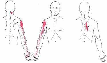 Shoulder Strain - Learn How To Locate, Treat & Prevent Shoulder Muscle Problems From Sports Injuries, Work Related Problems And Everyday Activities.