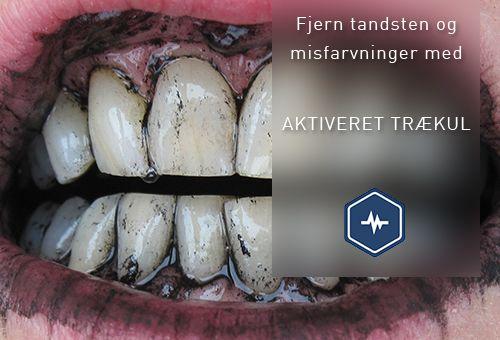 Undgå tandsten og misfarvninger på dine tænder på en naturlig måde - med aktiveret trækul