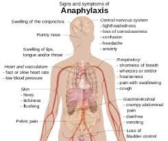 anaphylaxis cards - Buscar con Google