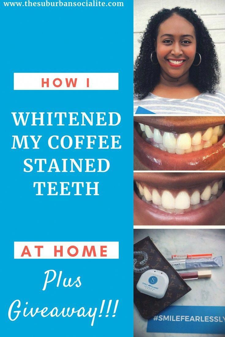 At Home Teeth Whitening For Coffee Stains Teethwhitening Diy And