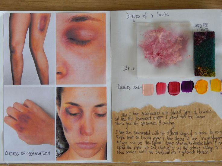 Pages 5 and 6. By using a bruise makeup kit I have created bruises at different stages in different places of the body. I then went on explore showing colours of a bruise at different stages by using acrylic. When lifting up the tracing paper, the different stages of the bruise, ranging through pink and purple, to yellow and red at the end.