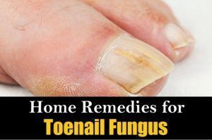 How to cure an ingrown toenail? How to get rid of ingrown toenail fast? Home remedies for ingrown toenail treatment. Best ways to treat ingrown toenail. #ToenailFungusPeople