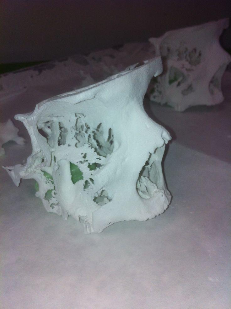 3D print paranasal sinus side view