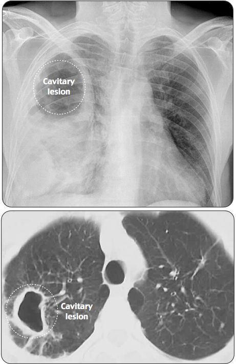 respiratory disease and pneumonia bacteria In cases of pneumonia due to p aeruginosa, specific cytotoxic mediators may explain the high rate of lung injury during infection [38.