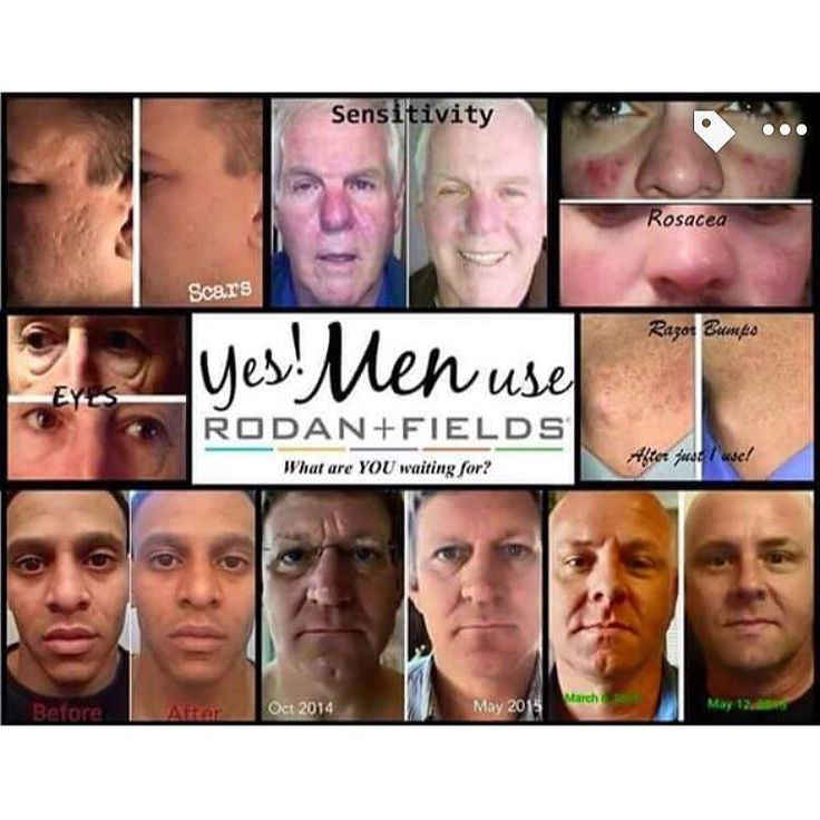 Hey GUYS! Rodan and Fields is for you too! Look at the results undeniable! Bburroughs1.myrandf.com