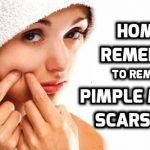 How to get rid of acne fast? Get rid of acne overnight? How to get rid of acne naturally? Get rid of acne fast, overnight & naturally. Acne remedies fast.