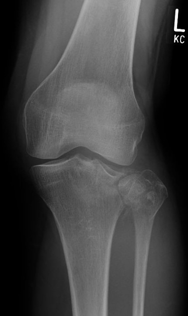 Tibial plateau fractures were originally termed a bumper - Tibial plafond fracture classification ...