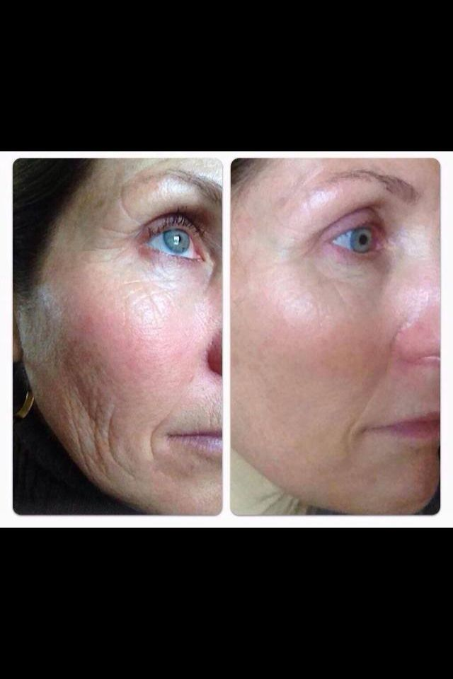 Before and after picture! Customer using Nerium. Get rid of those laugh lines and look years younger! go to http://www.hollylove.nerium.com to get yours!
