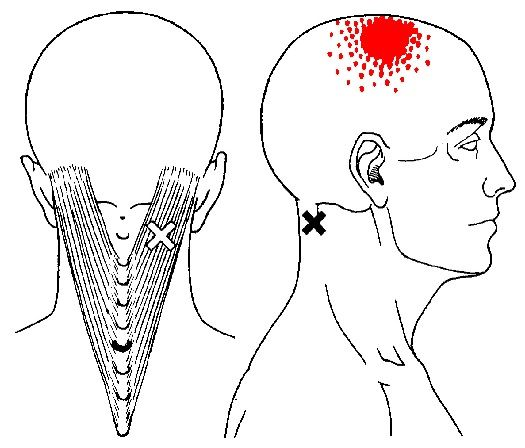 splenius capitis trigger points and referred pain pattern