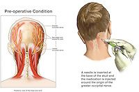 Occipital Nerve Block Injection | Doctor Stock