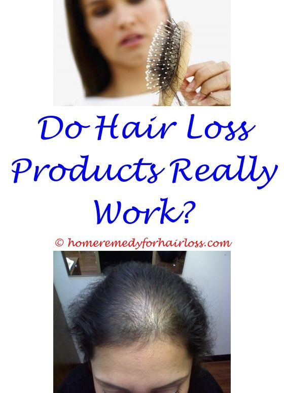 14 best Best Hair Loss Products images on Pinterest