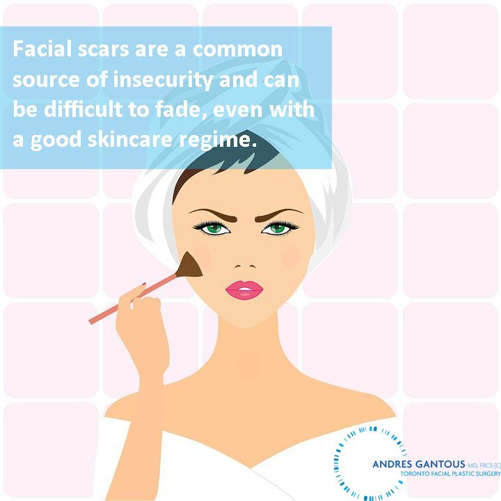Good #skincare can only go so far.Contact us to learn more about our #scarrevision options. #TorontoPlasticSurgery #cosmeticsurgery