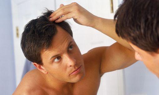 como-prevenir-queda-de-cabelo-masculino