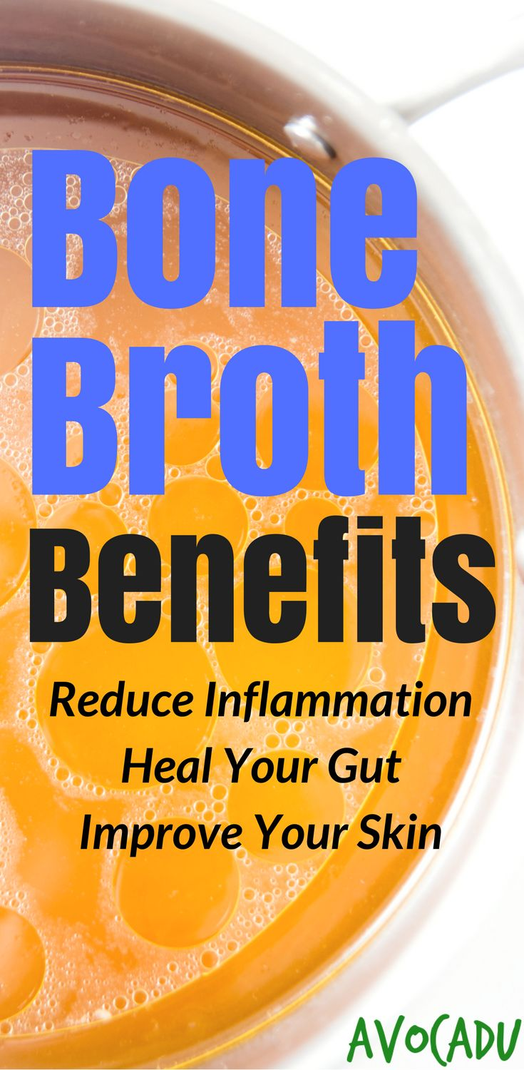 Bone Broth Benefits | Bone Broth to Lose Weight | Improve Skin | Reduce Inflammation | Bone Broth Recipes | http://avocadu.com/bone-broth-benefits/