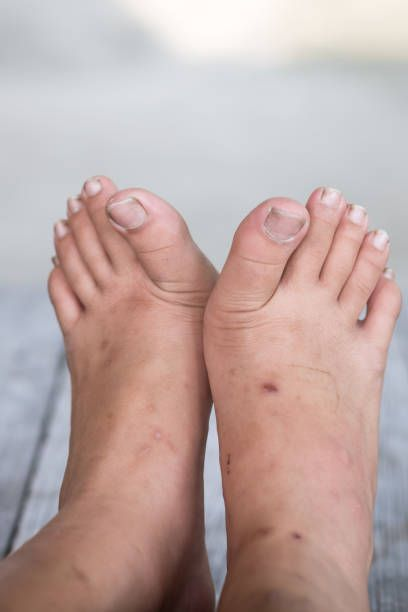 How To Get Rid Of Severe Fungal Nail Infection-Treatment For Nail ...