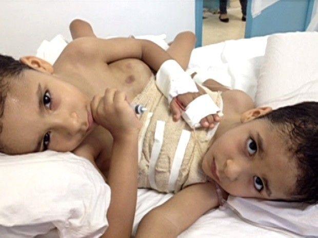 Os gêmeos siameses Arthur e Heitor, de 4 anos, receberam alta neste sábado (23) do Hospital Materno Infantil, em Goiânia, onde estavam internados há três dias. Os irmãos passaram por procedimento cirúrgico para colocar duas bolsas expansoras de pele, um preparativo para a cirurgia de separação definitiva.