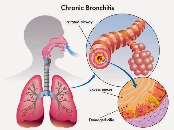 Chronic Bronchitissmoothiesrecossshealthy