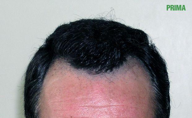Maschera per capelli da olio di ricino con cognac