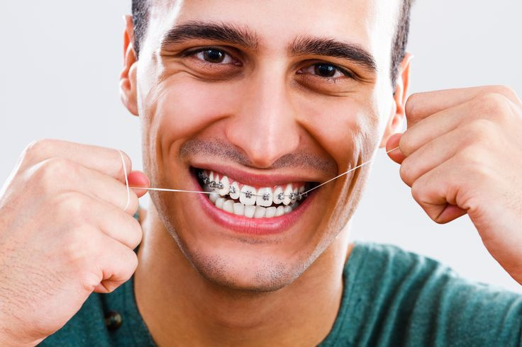 Costs adult braces