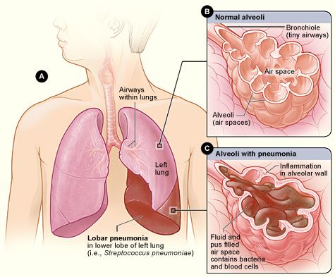 Figure A shows the location of the lungs and airways in the body. This figure also shows pneumonia that's affecting the lower lobe of the left lung. Figure B shows normal alveoli. Figure C shows infected alveoli.