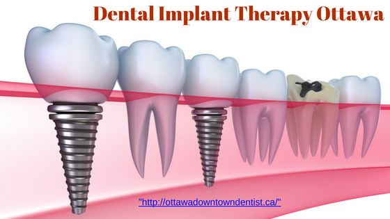 A dental implant is an artificial root that is surgically placed within the bone of the jaw to replace a missing tooth (or even to hold an attached denture or bridge). An implant can be a magnificent replacement for an individual who has lost a tooth due to periodontal disease, injury or extraction, come our branch for implant dentist Ottawa,for more details see- https://ottawadentalservice.wordpress.com/2016/11/21/dental-implant-therapy-ottawa/