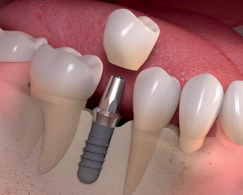 Salud, Estética e Implantologia Dental Centro Odontológico Acoyte Av. Acoyte 565 - CABA 011-4958-1754 www.odontologiacoyte.com.ar