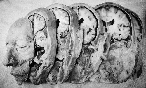 Slices of a head