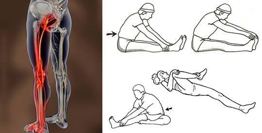 Come sbloccare il nervo sciatico: 4 semplici esercizi per alleviare il dolore