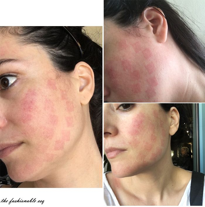Laser facial side effects and risks