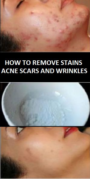 THIS FACE MASK MAGICALLY REMOVES STAINS, ACNE SCARS AND WRINKLES AFTER SECOND USE!