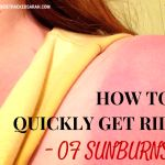 How to Quickly Reduce a Bad Sunburn