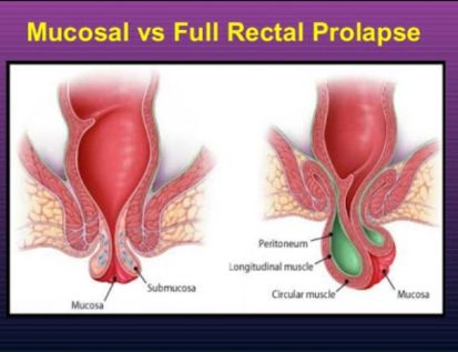 medicine for prolapse rectum