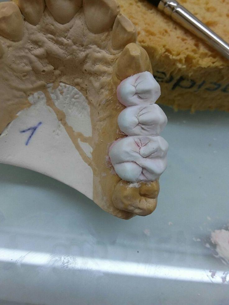 Mehmet Akif Minaz dental technician Smile designer neutral colors