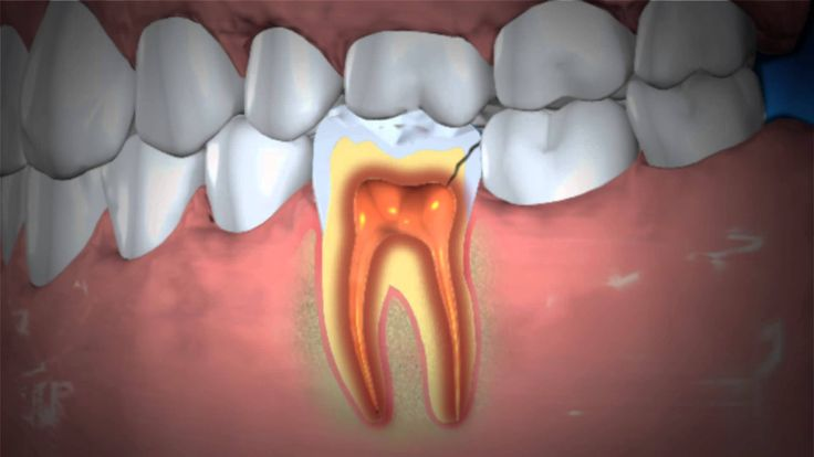 Treatment of Abscessed Teeth  A video from the American Dental Association.