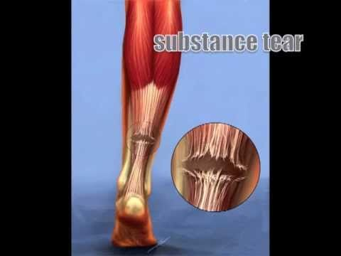 Great video on Achilles Tendon Rupture (Tear)-OrthoInfo ...