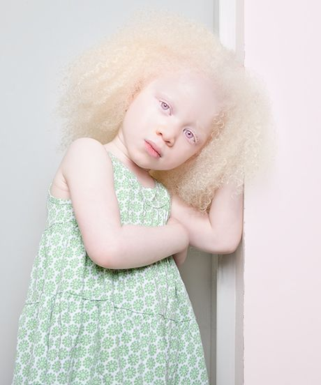 What does an albino person look like-7474
