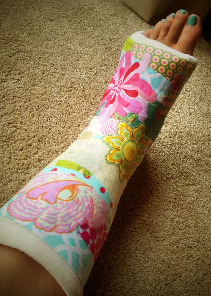Got tired of my white cast so I decorated it with fabric strips and Mod Podge.