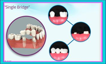 Things you should know about #Dental_Bridge. The Cost, Packages, Procedures and your Options.  #DentalBridge #Crowns #veneers #dental #Los_Algodones #Mexico