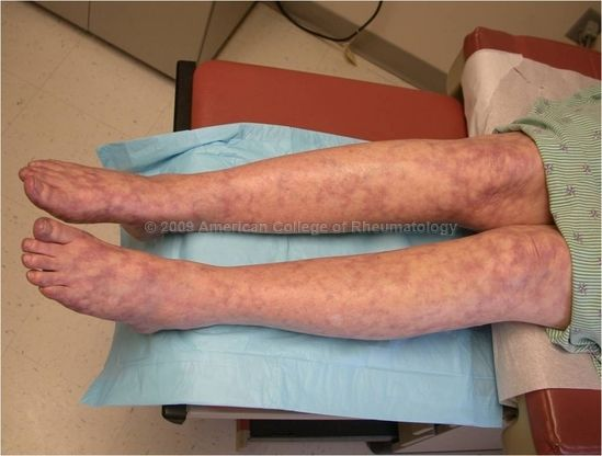 Antiphospholipid Syndrome: Livedo Reticularis, Legs