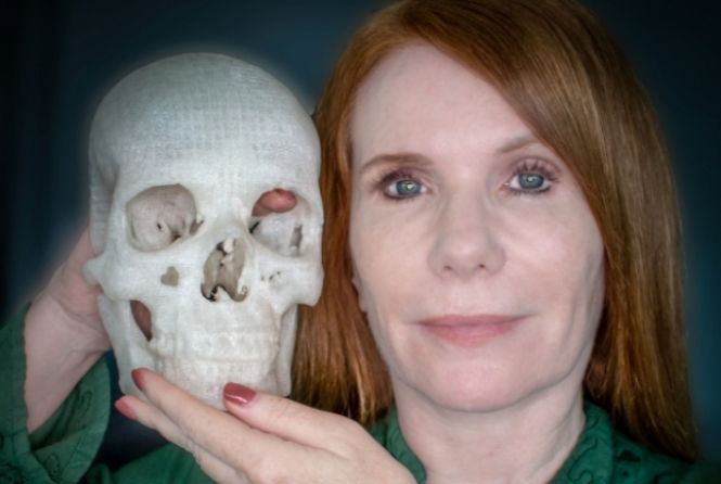 Crânio impresso em 3D auxiliou médicos a removerem um tumor cerebral