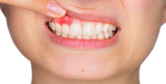 Zánět dásní je velmi nepříjemný. Zkuste tento problém vyřešit pomocí přírody.